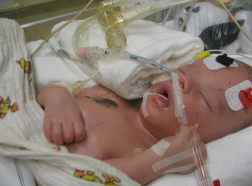 Mama Mutter Zweifachmama Österreich Strizzi Behinderung Leben mit Behinderung schwere Behinderung Kind Kind mit schwerer Behinderung