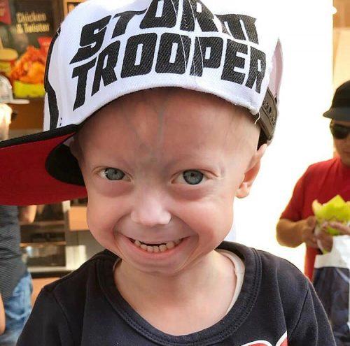Progerie Leben mit Kindern Mamaleben ein besonderes Kind Leben mit Krankheit Familie Familienleben Mutterliebe MutterKutter